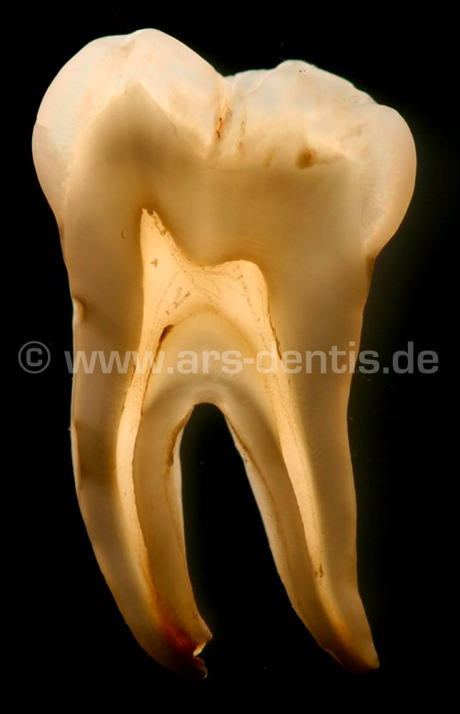 Tooth Tooth any of the hard resistant structures occurring on the jaws and in or around the mouth and pharynx areas of vertebrates Teeth are used for catching and